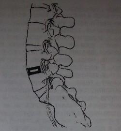 Фиксация тел смежных позвонков кейджем