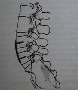 Фиксация тел смежных по¬звонков пластиной и шурупами. Чаще всего сочетается с фиксацией тел позвонков кейджем.